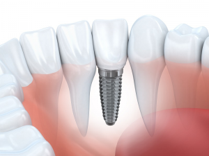 example of how a dental implant fits within a mouth
