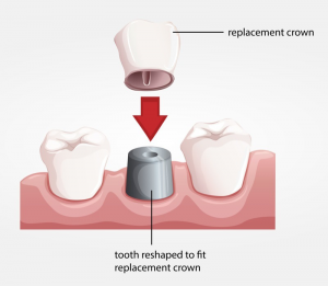 chart showing how a replacement crown is placed on a reshaped tooth